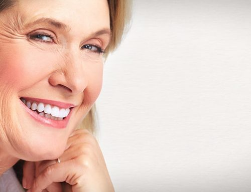 FAQs about Gum Lift Surgery