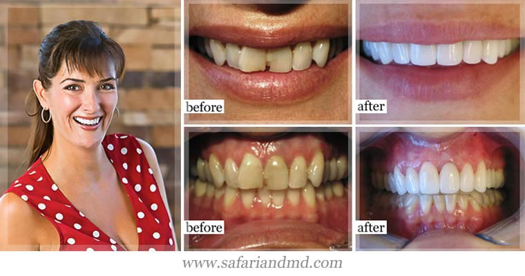 Cosmetic dentistry examples from beautiful woman