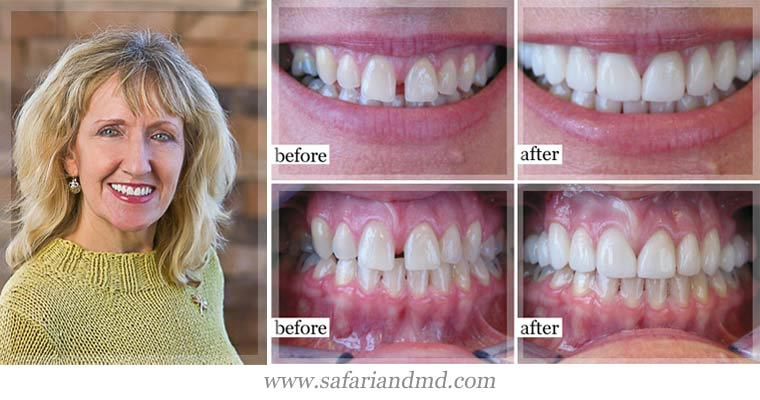 Before and after cosmetic dentistry in San Diego