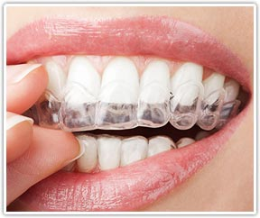 Orthodontic dental services in San Diego