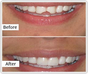 Dental Bonding before and after photo in San Diego