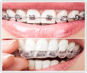 Invisalign comparison with traditional wire braces in San Diego