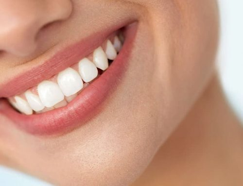 5 Benefits of Getting Routine Dental Care Now